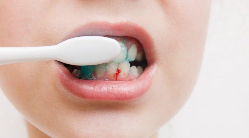 ¿Por qué sangran las encías? Causas y remedios