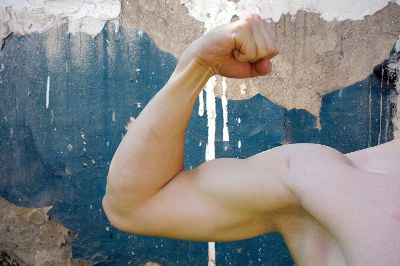 ¿Qué es la tendinitis del bíceps?