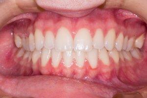¿Cuál es la diferencia entre gingivitis y periodontitis?