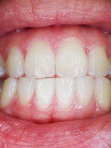 ¿Qué es una fístula en la boca?