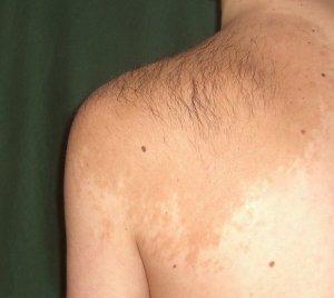¿Qué son los lunares rojos en la piel?