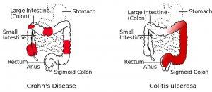 ¿Qué es la colitis ulcerosa? Síntomas y tratamiento