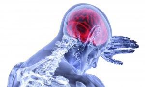 ¿Qué es la terapia Bobath en Fisioterapia?