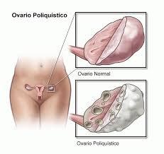 ¿Cómo puedo quedar embarazada con ovarios poliquísticos?