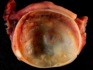 ¿Qué es un quiste hemorrágico en el ovario?