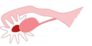 Remedios para la inflamación en los ovarios