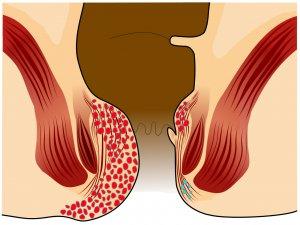 ¿Qué es bueno para desinflamar las hemorroides externas?
