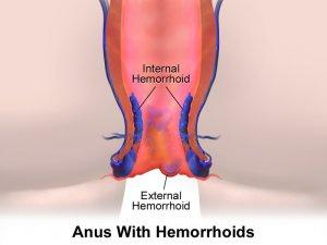¿Cómo curar las hemorroides internas y externas?