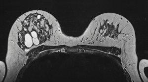 ¿Desde qué edad se hace la mamografía?