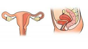¿Aparecen quistes ováricos en la menopausia?