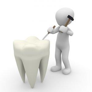 ¿Por qué tengo dolor de dientes?