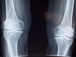 ¿Qué es un tumor óseo y cuáles son sus síntomas?