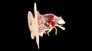 ¿Cómo es la Mastoidectomía y Timpanoplastia?