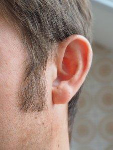 ¿Por qué se realiza la mastoidectomía?