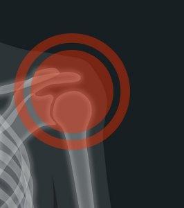 ¿Qué es una calcificación en el hombro?