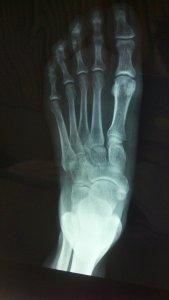 ¿Cómo saber si tengo una fisura en el pie?