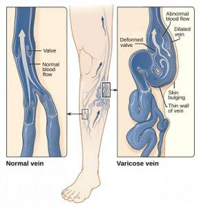 Láser vascular