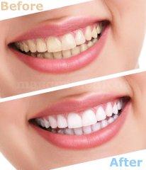 Dentisalud