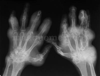 Clínica experta en el manejo del dolor osteomuscular