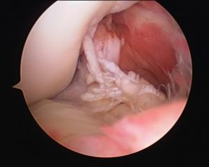 Lesiones del ligamento cruzado anterior