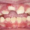 ¡Doctor, no erupcionan mis dientes! - Alba & Hernanz - ALBA&HERNANZ : ALBA&HERNANZ