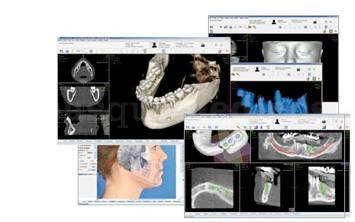 Software de tomografía - Clínica Odontología Avanzada