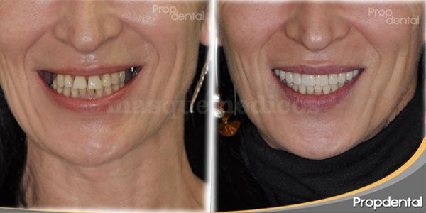 caso de implantes dentales - Clínica Dental Propdental Encants
