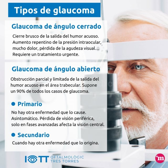 Tipos de glaucoma - Instituto Oftalmológico Tres Torres