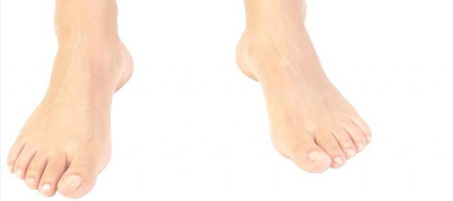enfermedades del pie - David Borda