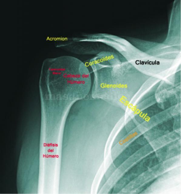 Radiografía de hombro - Guido Fierro