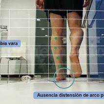 Biomecánica de la marcha - Calero Clínica Podológica