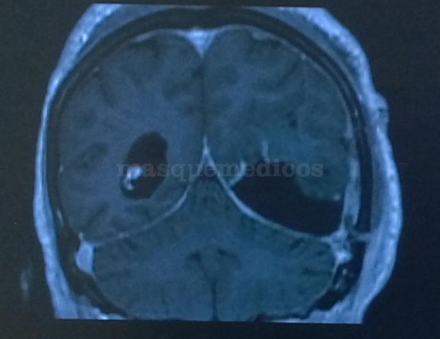 Reseccion tumoral - post operación - Carlos Llumiguano Zaruma