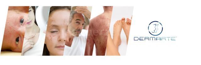 tratamiento - Rafaél  Arteaga Covarrubias