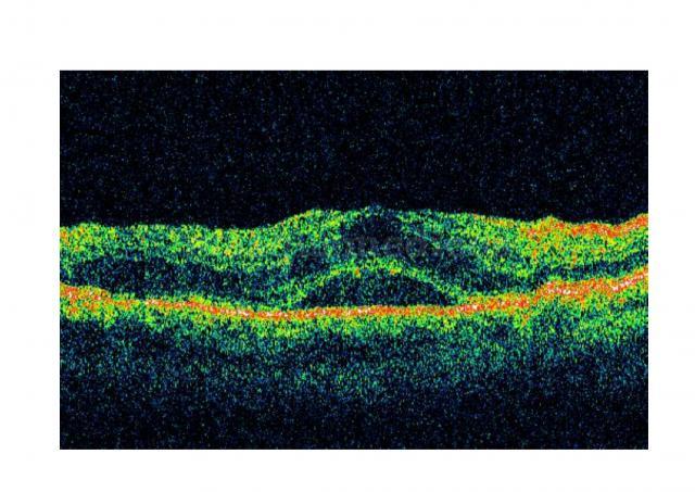 EDEMA O CSR - Clínica Ocular
