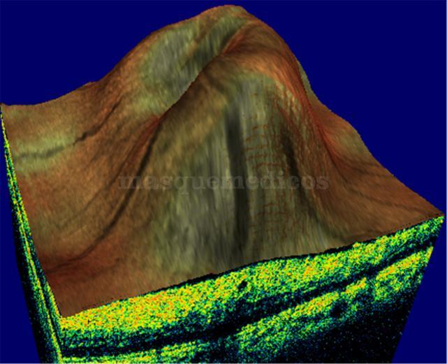 EDEMA - Clínica Ocular
