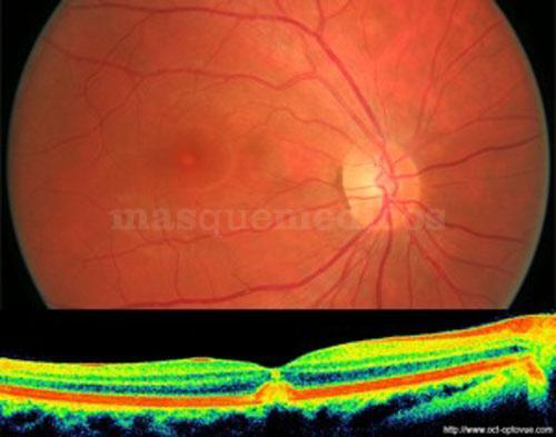DEG VITELIFORME - Clínica Ocular