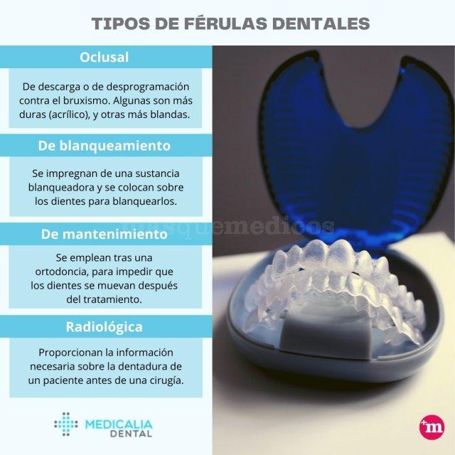 Tipos de férulas dentales - Medicalia - Clínica Dental Medicalia Fuenlabrada