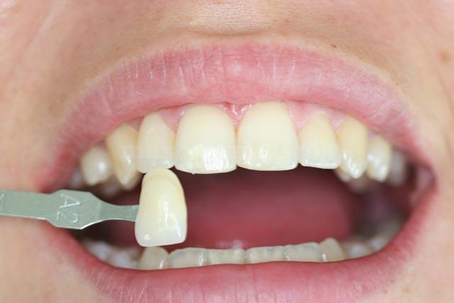 Todos los tratamientos dentales en Fuenlabrada Madrid - Clínica Medicalia