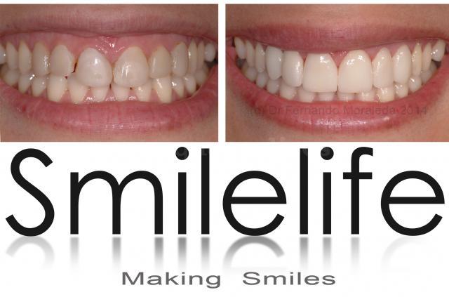 Smilelife - Dres. Moraleda & Asociados