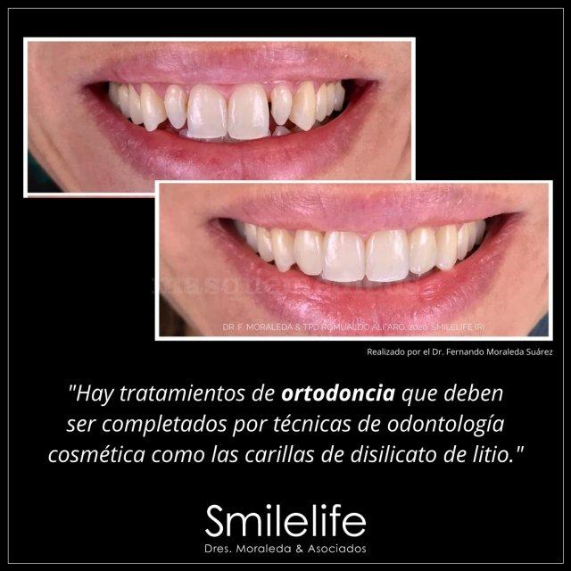 Ortodoncia y carillas dentales - Smilelife - Dres. Moraleda & Asociados