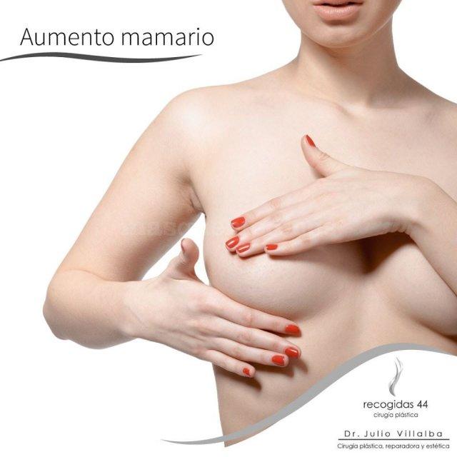 Aumento mamario Granada - Julio Villalba Jiménez