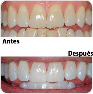 Blanqueamiento dental - Javier Palma