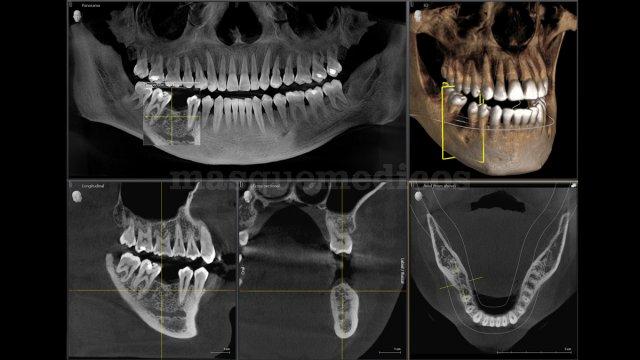 Tac dental 3D - Radiología Dental Las Palmas