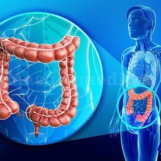 Inflamación intestinal, síndrome de Chron, colon irritable, intolerancias alimentarias  - Laura Arnold Pedernera
