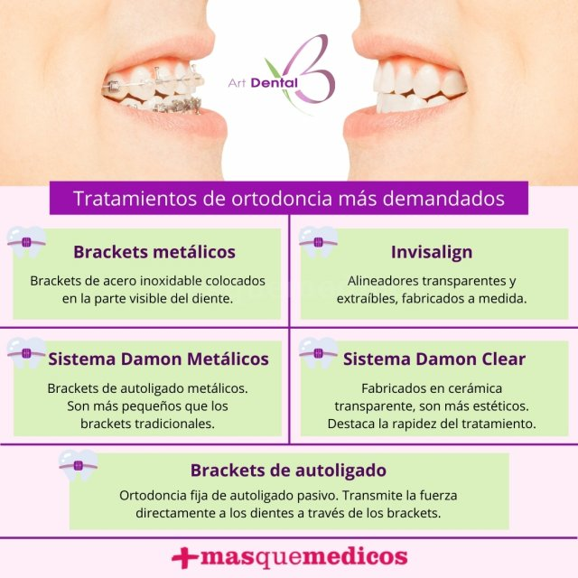 Tratamientos de ortodoncia más demandados - Clínica Art Dental Madrid