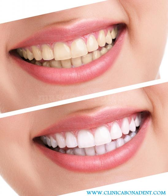- Clínica Dental Bonadent