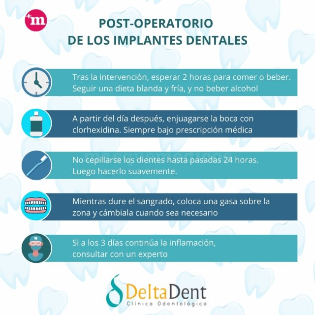 Post-operatorio implantes dentales - Delta Dent - Clínica Dental Delta Dent