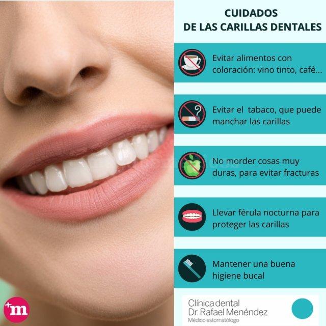 Cuidado de las carillas dentales - Clínica Dental Rafael Menéndez - Clínica Dental Rafael Menéndez
