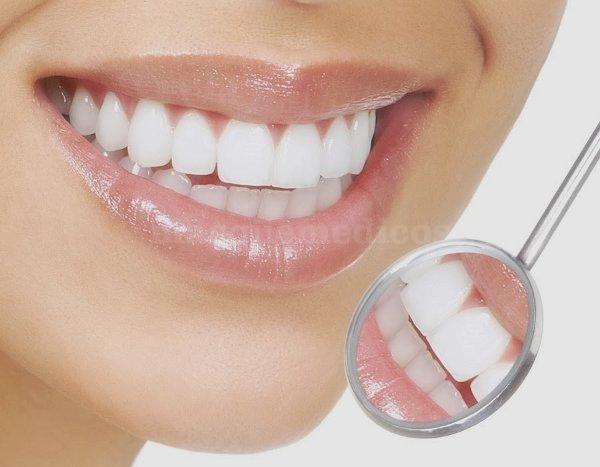 Blanqueamiento dental - Control Dental Europeo