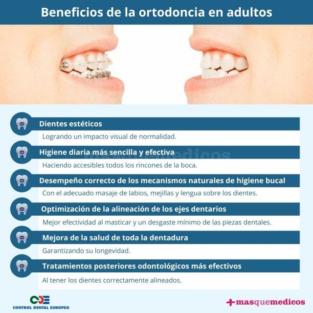 Beneficios de la ortodoncia en adultos - Control Dental Europeo - Control Dental Europeo